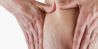 1. Menghilangkankan Stretch Mark
