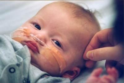 Hati-hati, Ini Bahaya Campak Pada Bayi yang Harus Diwaspadai
