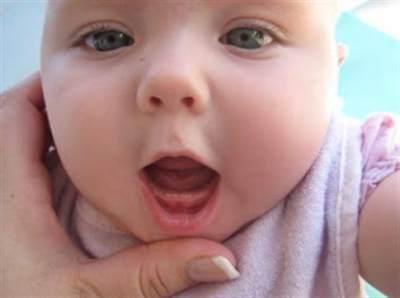 2) Gusi Bayi Merah dan Bengkak