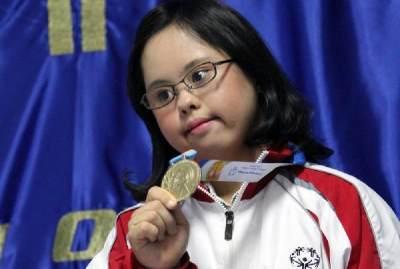 So Inspiring! Ini Deretan Anak Down Syndrome Indonesia yang Berprestasi