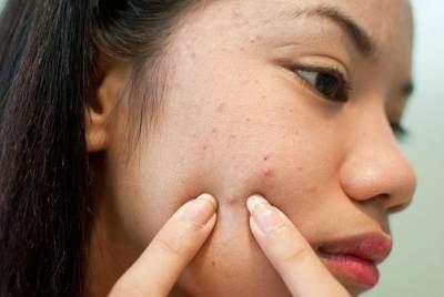 Duh, 4 Masalah Kulit Ini Paling Sering Menyerang Ibu Hamil Lho!