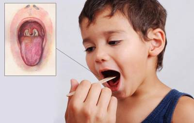 10 Gejala Penyakit Difteri yang Moms Wajib Tahu