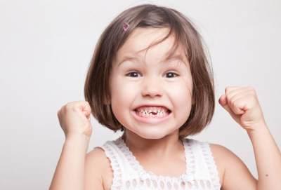 5 Penyebab Gigi Hitam Pada Anak Yang Harus Kamu Ketahui