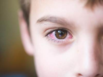 Kenali 3 Gangguan Kesehatan Mata pada Anak yang Paling Sering Terjadi