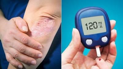 Penyakit yang Berkaitan Dengan Bau Badan