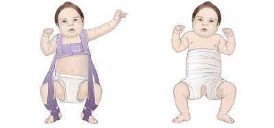 Bayi Perempuan Memiliki Risiko Alami Displasia Pinggul, Apa Itu?