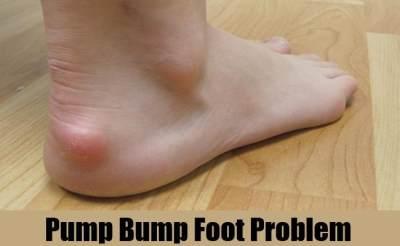 2. Pump Bump