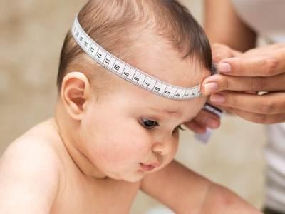 Penting! Ketahui Penyakit Cacat Lahir Craniosynostosis Pada Anak, Moms