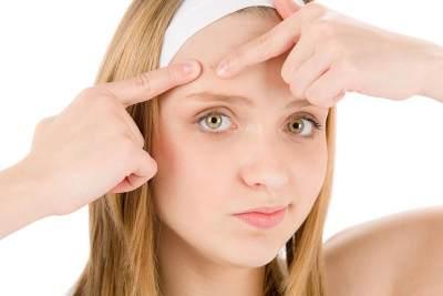 Yuk, Kenali Perbedaan Jerawat Remaja dan Adult Acne