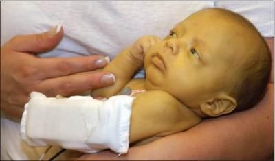 Ternyata, Ini Gejala Sakit Kuning pada Bayi dan Penyebabnya, Moms!