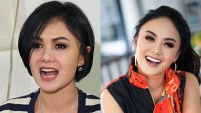 Lihat Perbedaannya! Ini Dia 7 Foto Before and After Artis yang Lakukan Veneer Gigi!