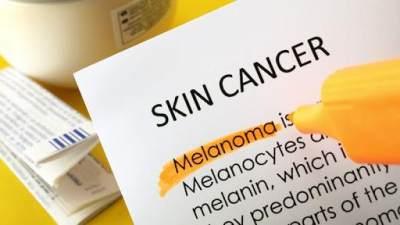 Pengertian Kanker Kulit Melanoma