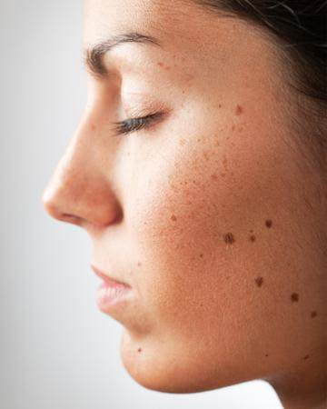 Ternyata Tahi Lalat Bisa Berbahaya, Ini Tips untuk Mengetahui Ciri-cirinya!