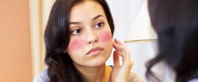 Bibit Collagen Berbahaya?  Cari Tahu Faktanya di Sini!