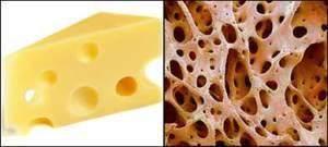 Keju dan Tulang
