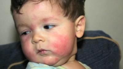 Penting Moms Perhatikan, Ini Gejala Si Kecil Alergi Makanan