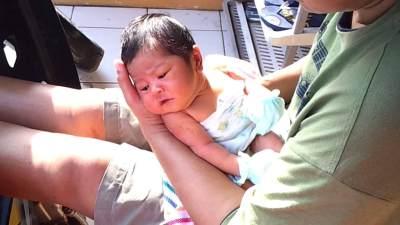 Kulit Bayi Kering dan Mengelupas? Ini Cara Mengatasinya!