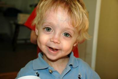 Gejala Bayi Dengan Sindrom Progeria yang Harus Diketahui Para Orang Tua