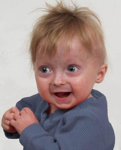 Kenali dan Pahami Diagnosis Serta Pengobatan Anak dengan Sindrom Progeria Ini