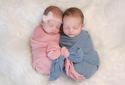 1. Penyebab Bayi Kembar Siam