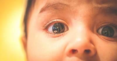 Waspadai Saat Mata Bayi Belekan! Begini Cara Mengobati Sakit Mata Si Kecil