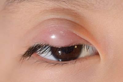 Cara Mengobati Sakit Mata pada Bayi