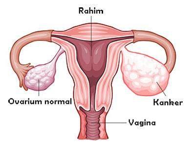 Moms Wajib Tahu Fakta-fakta Tentang Ovarium Berikut Ini