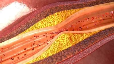 Benarkah Jeruk Nipis Bisa Turunkan Kolesterol? Cek Faktanya di Sini!