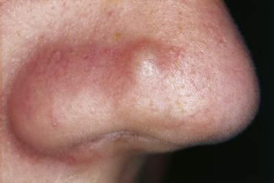 Jerawat di Hidung Bisa Jadi Tanda Infeksi