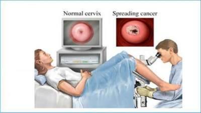 Kanker Serviks Menular