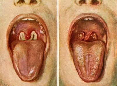 Gejala Difteri yang Sering Disepelekan