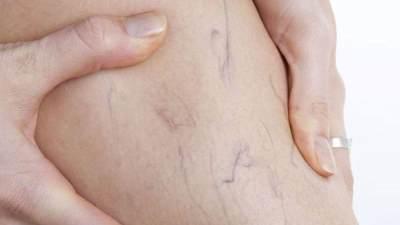 Waspada, Ini Dia Bahaya Varises dan Cara Pengobatannya Yang Wajib Mommy Tahu