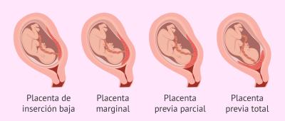 Mengenal Plasenta Previa, Seperti Apa Ciri dan Penanganannya?