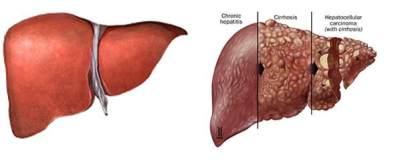 Penyakit Liver Kronis
