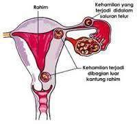Mengenal Kehamilan Ektopik dalam Medis
