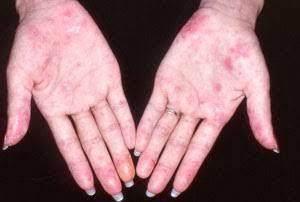 Apakah Penyakit Lupus Bisa Menular?