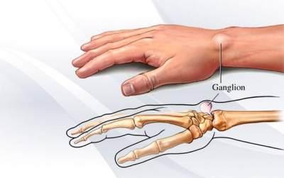 Cari Tahu Gejala Penyakit Kista Ganglion dan Cara Mengobatinya