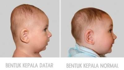 Mencegah Sindrom Kepala Datar