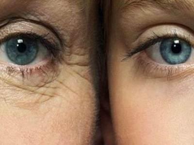 Manfaat Suntik Collagen