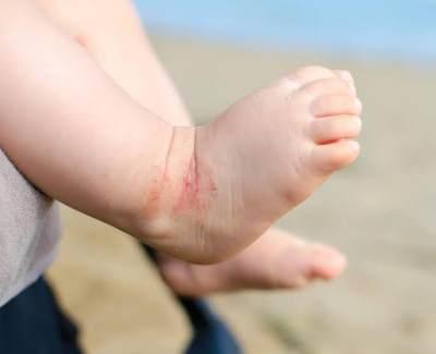 Penyebab Kulit Kering pada Bayi