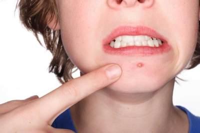 Apa Penyebab Munculnya Jerawat? 5 Kebiasaan Buruk Ini Bisa Jadi Salah Satunya