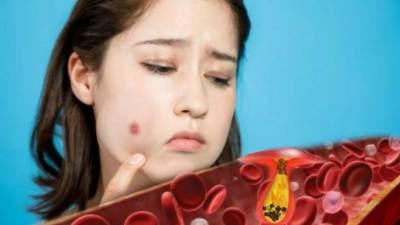 Gimana Sih Membersihkan Darah Kotor dalam Tubuh? Simak di Sini!