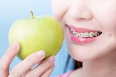 Pemakai Behel Gigi Sebaiknya Hindari Makanan Ini, Cari Tahu Apa Saja Yuk, Moms!