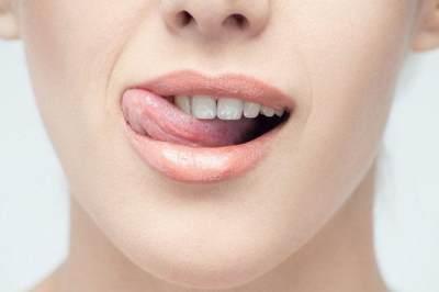 Duh, Ternyata Kebiasaan Buruk Ini Sebabkan Bibir Kering Saat Puasa!