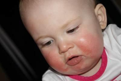 Mengenal Dermatitis Atopik, Penyakit Kulit yang Dialami Bayi Lucu Hingga Viral di Media Sosial