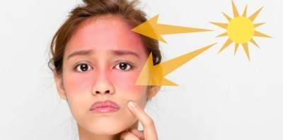 Cara Mudah Melawan Sunburn, Konsumsi 6 Super Food Ini Deh Moms!