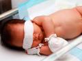 Bayi Terserang Penyakit Kuning, Kapan Harus Khawatir?