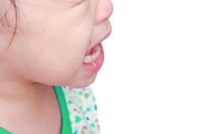 Sariawan Bikin Anak Susah Makan? Ketahui Penyebab dan Pengobatannya Yuk, Moms!