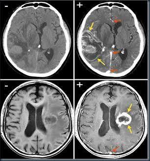 Mengenal Kanker Otak Gliobastoma, Penyakit yang Menyerang Agung Hercules