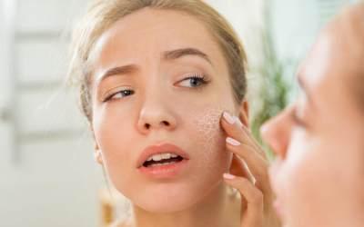 Biar Gak Cracky, Ini Tips Makeup Tahan Lama Untuk Pemilik Kulit Kering